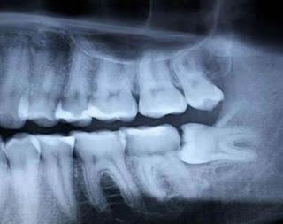 Jag VS tandläkaren 1-0 & jobbiga visdomständer
